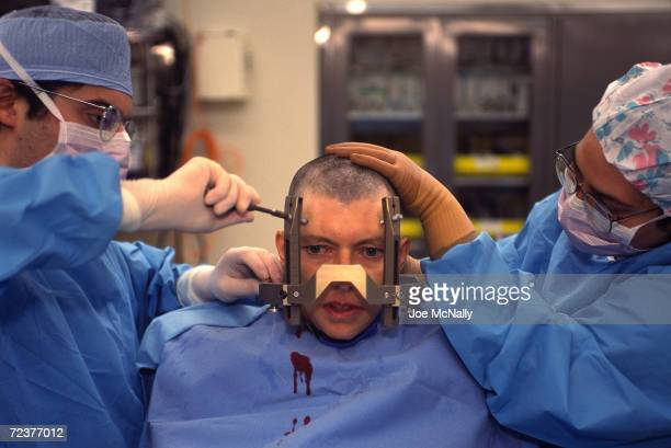 UNDATED Doctors secure a calibrated frame to Tana Linkous' skull as they prepare to discover what part of her brain is abnormal and causing her to...