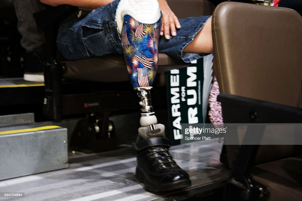 A Donald Trump supporter with a prosthetic leg waits for the presumtive Republican presidential candidate to speak at a rally in Fresno on May 27, 2016 in Fresno, California. Trump is on a Western campaign trip which saw stops in North Dakota and Montana yesterday and two more in California today.