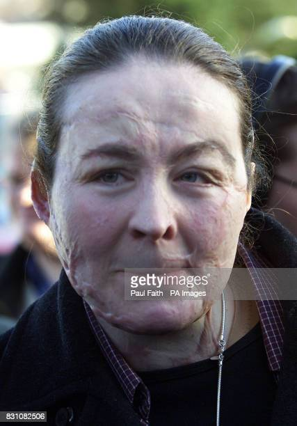 Donna Marie McGillion a victim of the Omagh bombing leaves the Silver Birch Hotel in Omagh after hearing Sir Ronnie Flanagan the Chief Constable...