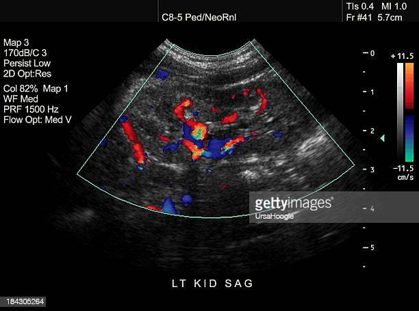 Doppler Ultraschall von Pediatric Kidney