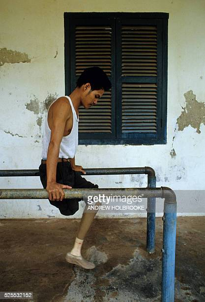 A double amputee mine victim learns to walk on one of his new wooden prosthetic legs at a rehabilitation center