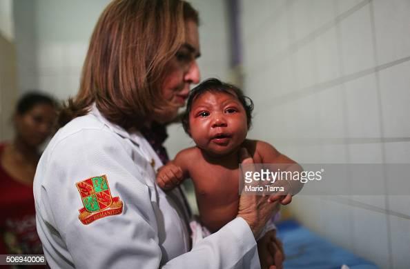 Dr Angela Rocha pediatric infectologist at Oswaldo Cruz Hospital examines Ludmilla Hadassa Dias de Vasconcelos who has microcephaly on January 26...