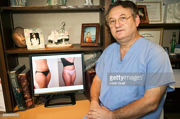 Dr Blau surgeon showing the before and after pictures of Melanie Gompers' liposuction operation Melanie Gompers lives in New York and works as a...