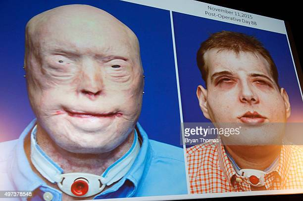 Dr Eduardo D Rodriguez displays an image from the successful completion of the most extensive face transplant to date at NYU Langone Medical Center...