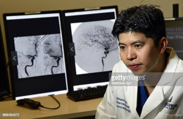 Dr Ferdinand K Hui a stroke specialist and associate professor of radiology and radiological science at the Johns Hopkins University School of...