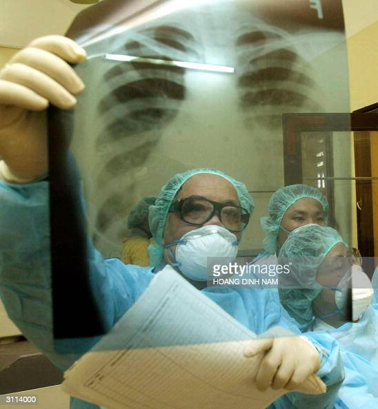 Dr Nguyen Van Loc Deputy Director of Hanoi's National Pediatric Hospital and his coleagues inspect a lung Xray results of a young child who is...