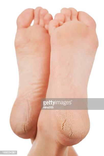 Au sec et fissuré Plante des pieds sur un arrière-plan blanc
