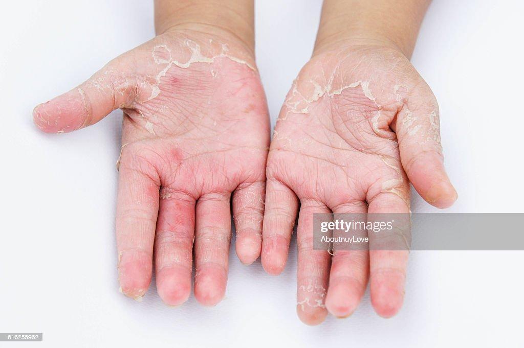 Dry hands, peel, Contact dermatitis, fungal infections, Skin inf : Foto de stock