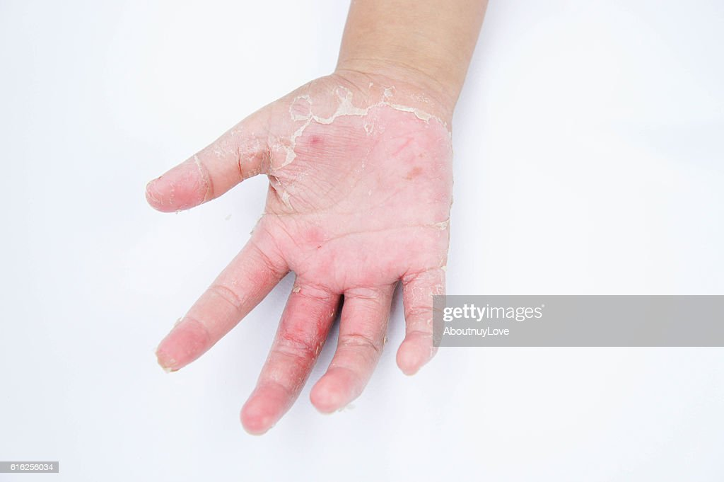 Dry hands, peel, Contact dermatitis, fungal infections, Skin inf : Stock Photo