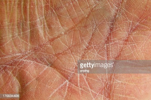 Dry Skin as shown on chapped hand-palm.