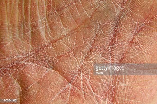 Trockene Haut wie auf rissige Hände-Innenhand.