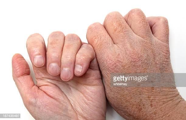 Trockene Haut der Hände, vorne und hinten