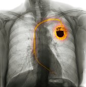 Dual chamber pacemaker, X-ray