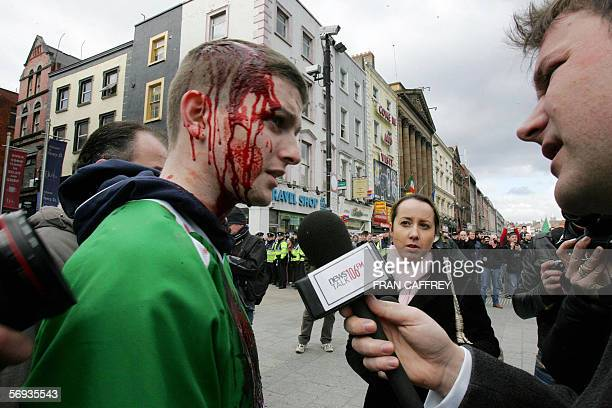 A media reporter interviews an injured man 24 February 2006 on Dublin's O'Connell street as republican protestors forced Protestant unionists from...