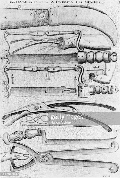 Early surgical instruments for the amputation of limbs used by French surgeon Jacques Guillemeau 1612 They include knives pincers saws and a needle...