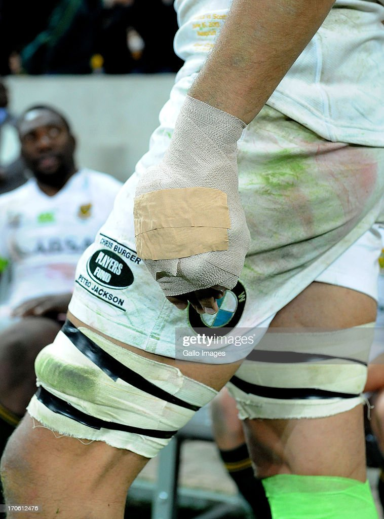 <a gi-track='captionPersonalityLinkClicked' href=/galleries/search?phrase=Eben+Etzebeth&family=editorial&specificpeople=7852672 ng-click='$event.stopPropagation()'>Eben Etzebeth</a> of South Africa with his injured hand during the Castle Larger Incoming Tour match between South Africa and Scotland at Mbombela Stadium on June 15, 2013 in Nelspruit, South Africa.