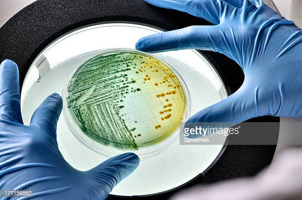 E.coli bacteria growing in dish inspected