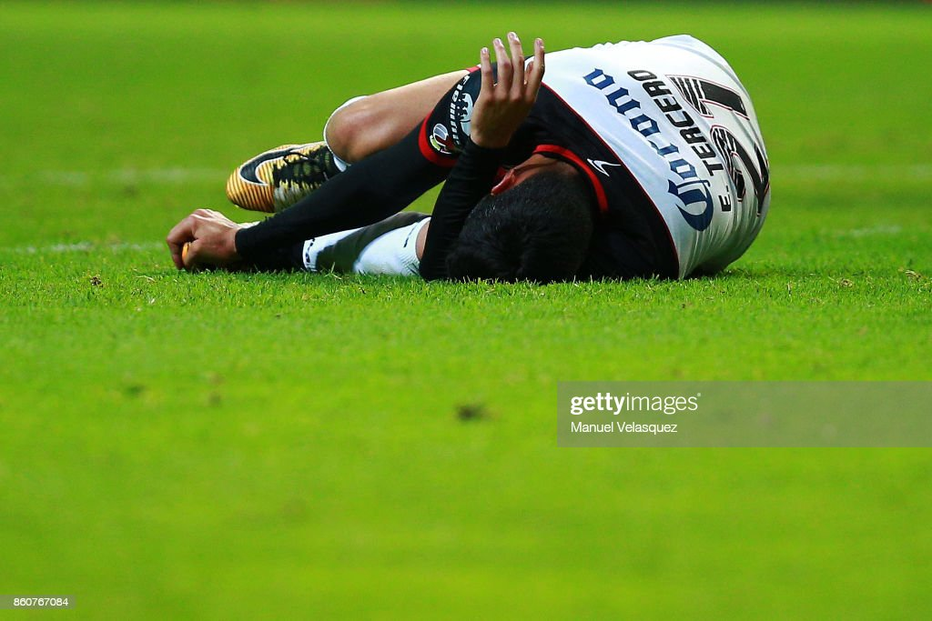 Eduardo Tercero of Lobos BUAP reacts after being injured during the 13th round match between Toluca and Lobos BUAP as part of the Torneo Apertura 2017 Liga MX at Nemesio Diez Stadium on October 11, 2017 in Toluca, Mexico.