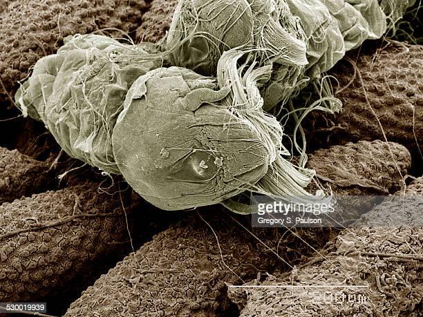 Eggs of Aedes Albopictus mosquito hatching SEM