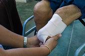 elastic bandaging of below knee stump