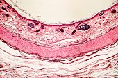 Elastic cartilage of human outer ear, light micrograph