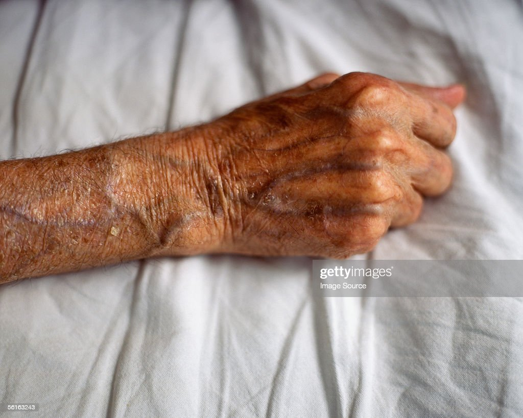 Elderly arm : Stock Photo