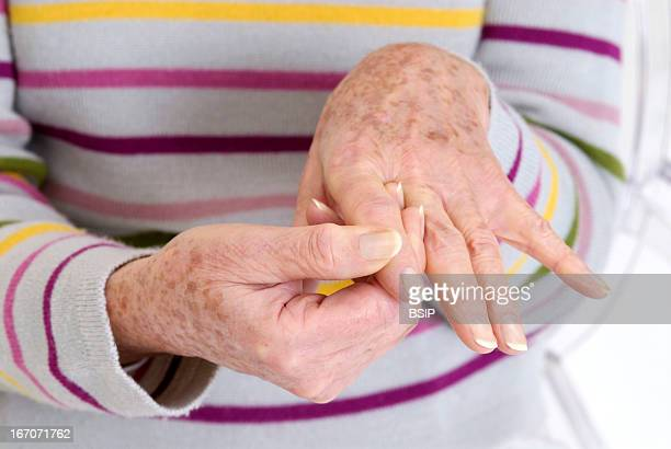 Elderly pers With painful hand Model