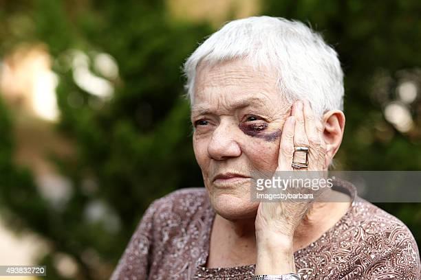 Anziani donna con Occhio nero
