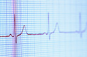 Electrocardiogram (pulse trace) displayed on a digital tablet screen