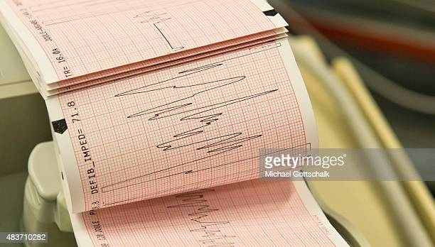 Electrocardiogram in the emergency room of a hospital on August 12 2015 in Berlin Germany