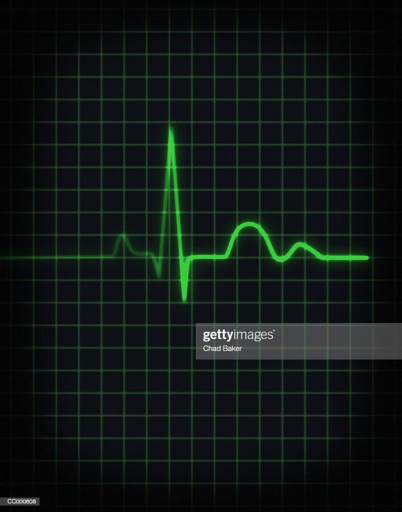 Electrocardiogram of human heartbeat, close-up : Stock Photo
