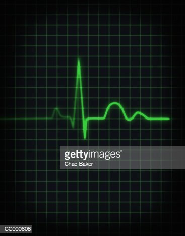 Electrocardiogram of human heartbeat, close-up