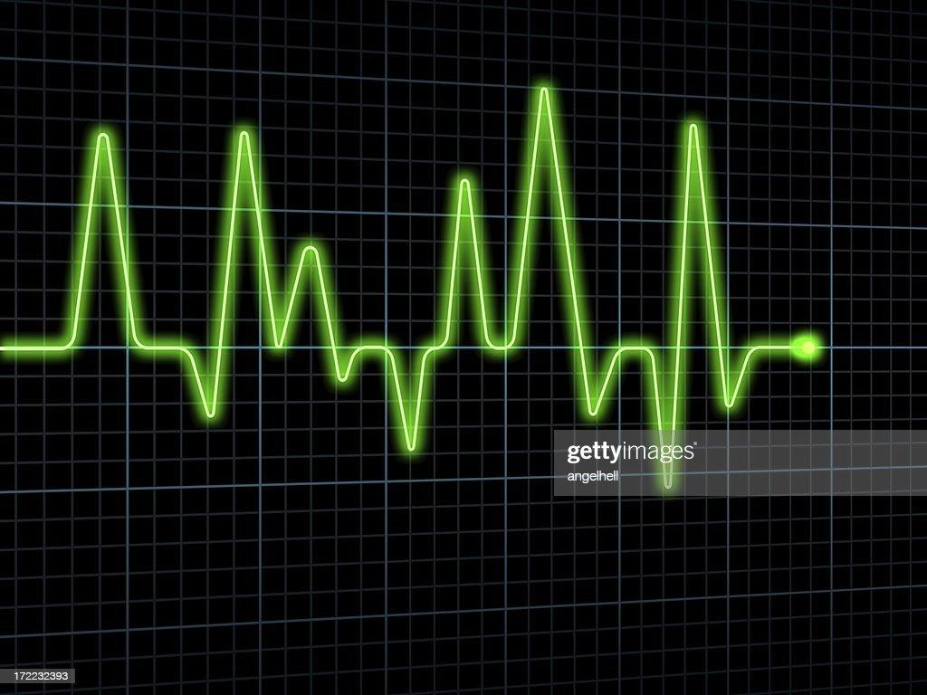Electrocardiogram (ECG / EKG)