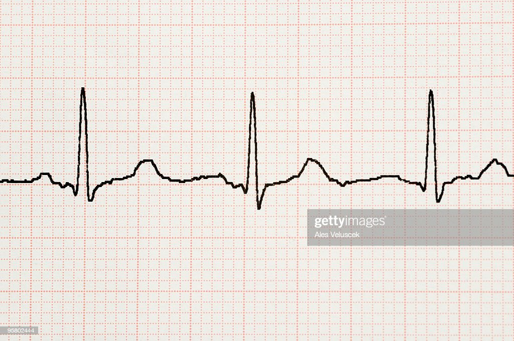 Electrocardiogram : Stock Photo