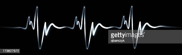 Électrocardiogramme. XXXL
