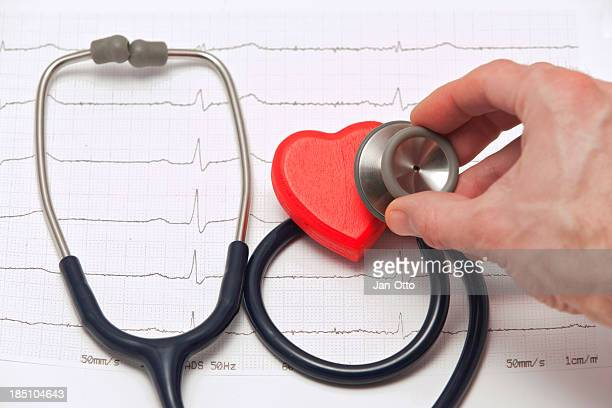 Electrocardiogramm