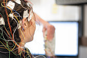 A stock photo of a close up of electrodes for an eeg test
