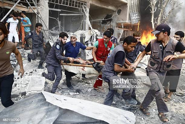 Emergency services and civilians carry a serverely wounded man on a stretcher following an air strike on Douma a rebelheld suburb east of the Syrian...