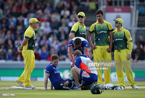 Eoin Morgan of England receives treatment after being struck on the head by a short ball from Mitchell Starc of Australia during the 5th Royal London...