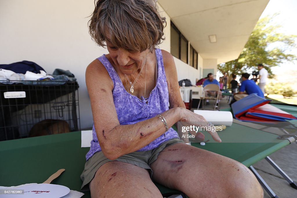 Evacuee Jan Ryan looks at wounds left from evacuating her dogs as she joins other evacuees at the Red Cross evacuation Center in Kernville Friday, June 24, 2016. More than 100 structures have been lost in a fast-moving brush fire that broke out in a rural area of Kern County yesterday.