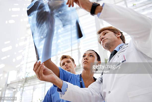 Examining the xrays