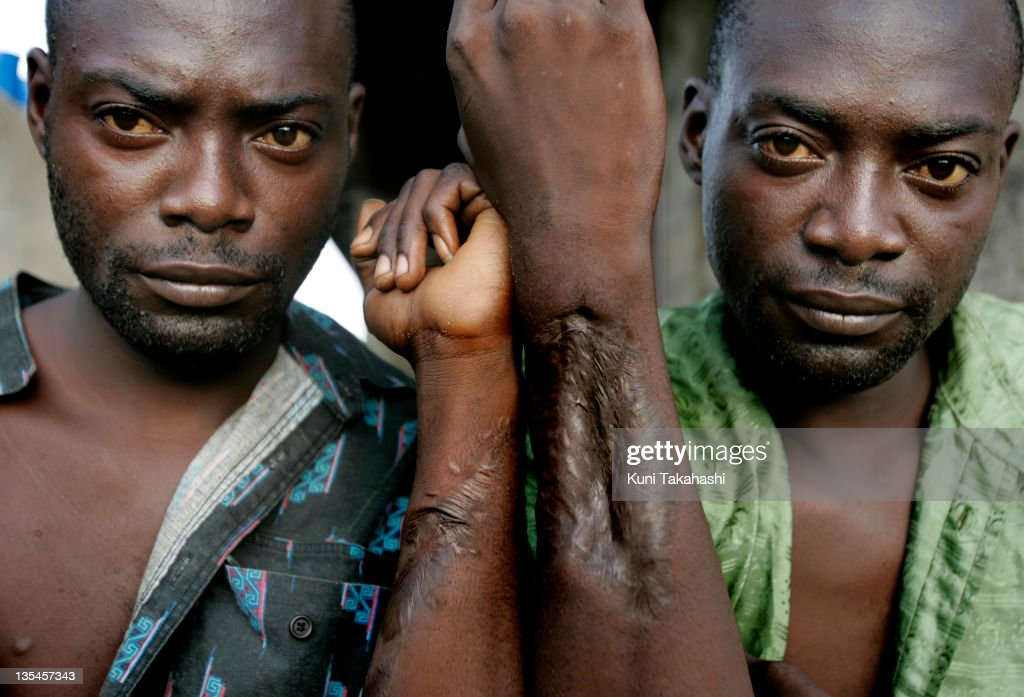 Ex-combatants Ahmed Gray (L) and his twin brother Eugene show bullet wounds they received during the civil war May 1, 2008 in Monrovia, Liberia. Ahmed and Eugene, both 28, who joined militias when they were 12 years old and fought against each other at one point, are now homeless. Although the country's 14-year civil war ended in 2003, many ex-combatants are still struggling to survive due to the lack of jobs in a weak economy.