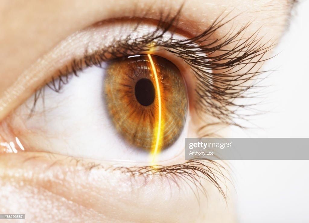 Extreme close up of laser scanning hazel eye : Stock Photo