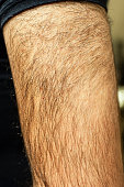 Extremely hairy male upper arm
