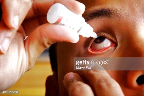 Eye drops on dry eyes
