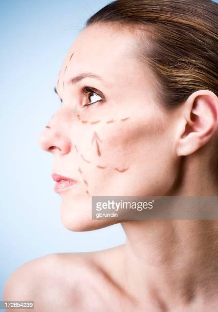 Gesichtstraffung Profil