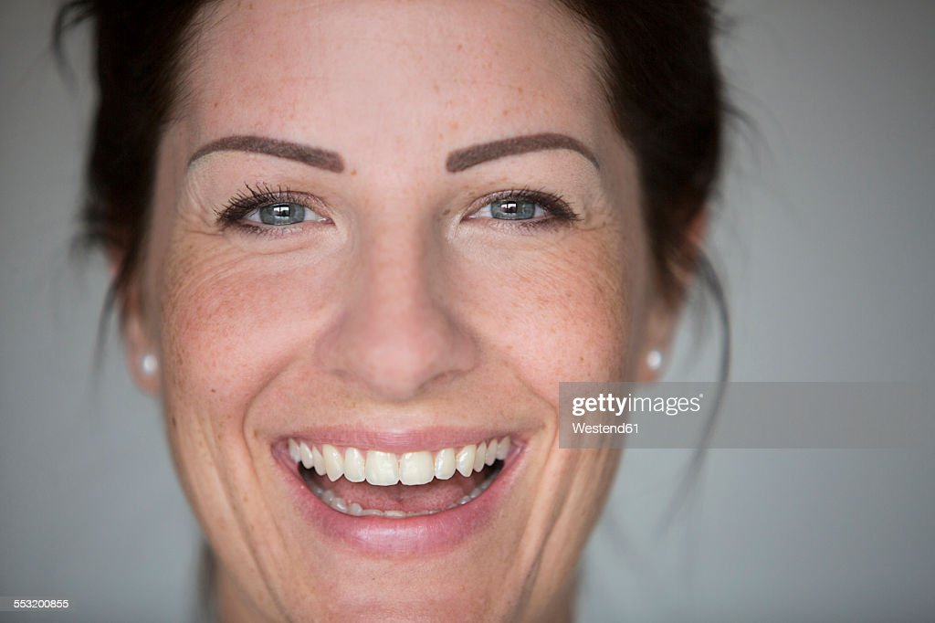 Face of laughing woman with freckles