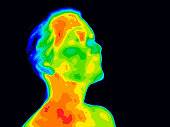 Thermographic image of a human face and neck showing different temperatures in a range of colors from blue cold to red hot. Red in the neck might indicate raised CR-P levels, this could be a sign of i