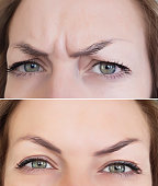 face woman wrinkles before and after the forehead botox