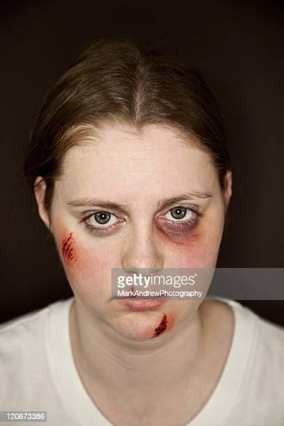 Facial Injuries